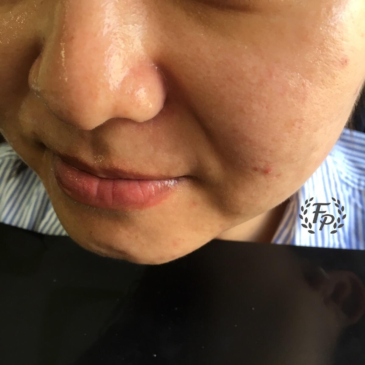 淨透顏毛孔緊緻鬆弛毛孔