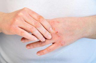 乾燥型敏感肌